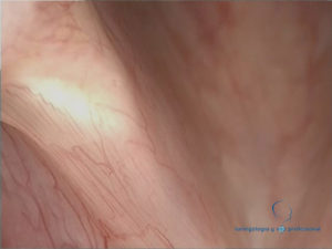 pliegue-vocal-derecho-normal